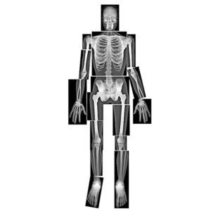 Rontgenfoto's menselijk lichaam
